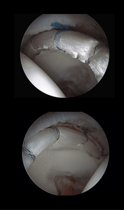 Labral Reconstruction after surgery.