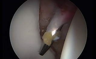 How to Safely Place Anchors Around the Entire Acetabulum